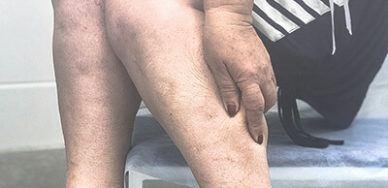 Боль, тяжесть в ногах