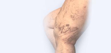 Ретикулярный варикоз (сосудистые сеточки, звездочки)