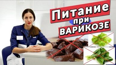 Какие продукты можно и какие нельзя есть при варикозе
