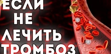 Почему опасно не лечить тромбоз?