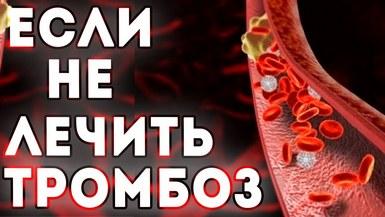 Чем опасен нелеченный тромбоз?