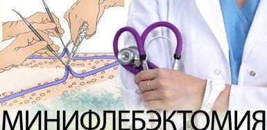 Кому нужна минифлебэктомия?
