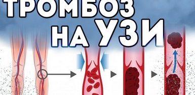 На УЗИ вен тромбоз, что делать?