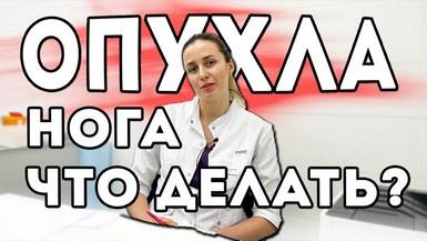Что делать если опухла нога? К какому врачу идти?